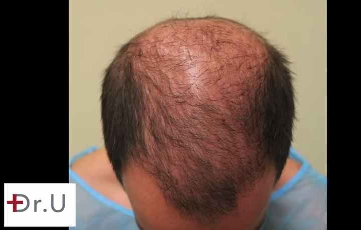 Patient's Frontal Scalp Before UGraft hair transplant