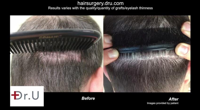 Adding hair density and strip scar repair using 1600 UGrafts