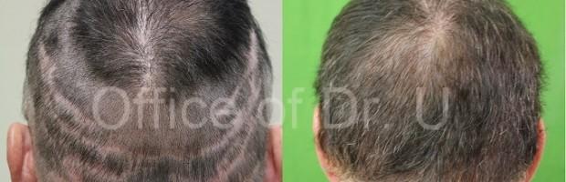 Repair of Multiple Strip Surgery Scars