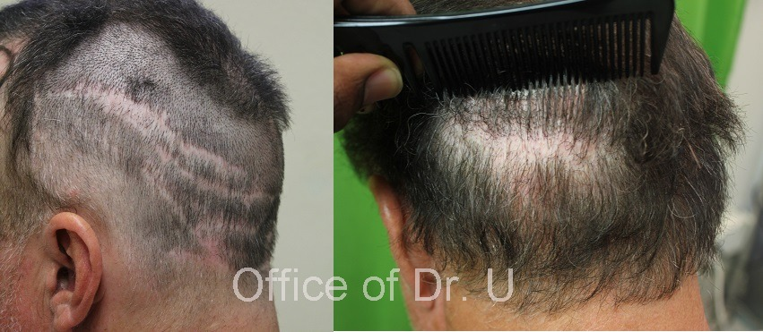 Before and after Body hair Transplant 7000 grafts - strip scar repair