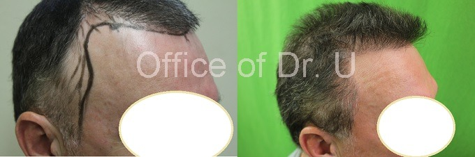 BHT by FUE 7000 grafts before and after temple points
