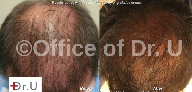 Beard Hair Grafts- Crown, Frontal Scalp & Top  Before and After