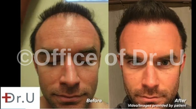 Beard Hair Transplantation|Strip Repair - 4500 Grafts