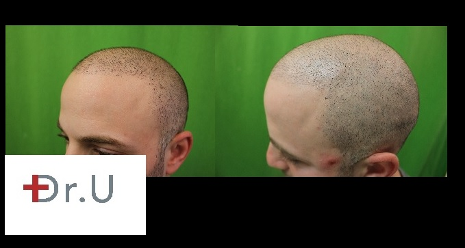 Trichopigmentation & SMP| Left Side of the Scalp - Hairline and Temples