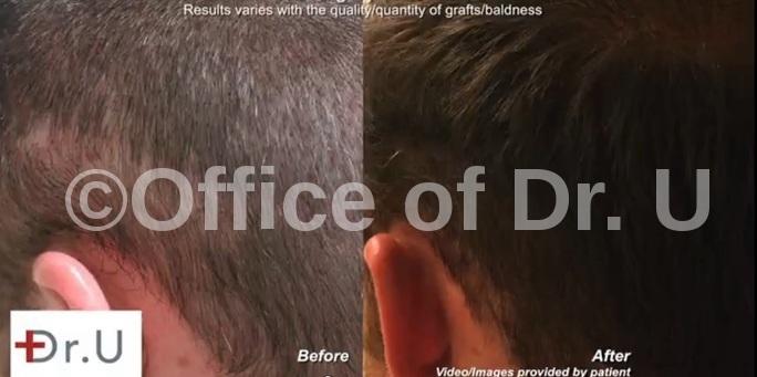 Beard Hair Transplantation  Left Side -Before & After
