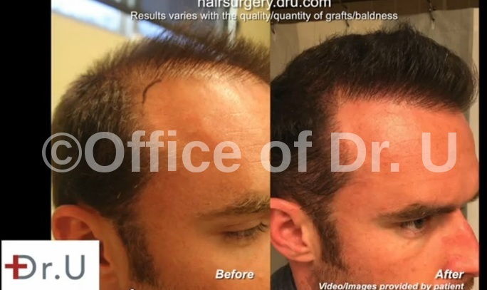 Temple & Hairline Restoration  Beard Hair Transplant - Right Side View