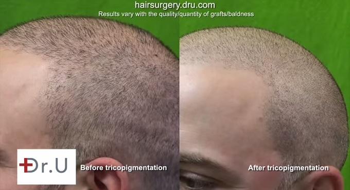 Scalp Micropigmentation Pigmentation Through