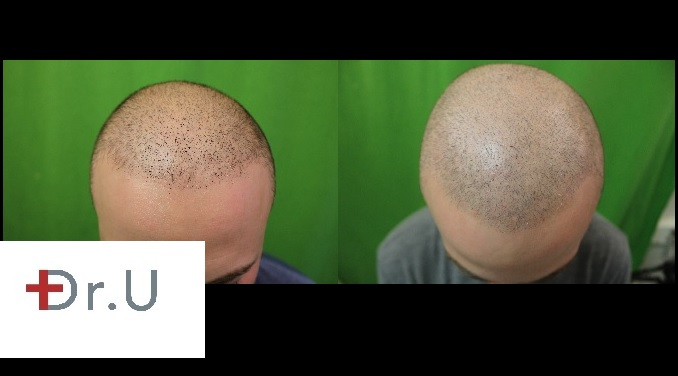 SMP via trichopigmentation| Frontal Scalp on Patient Before and After Treatment Series