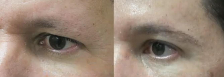 Eyebrow Restoration Results|Male Patient|Leg Hair Grafts