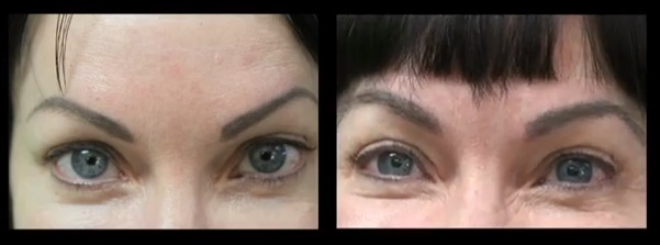 Los Angeles hair restoration patient of Dr U, before and after Eyebrow Transplant using fine nape hair