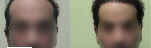 Body Hair Transplant Surgery| 11,000 Grafts - Front Facial View
