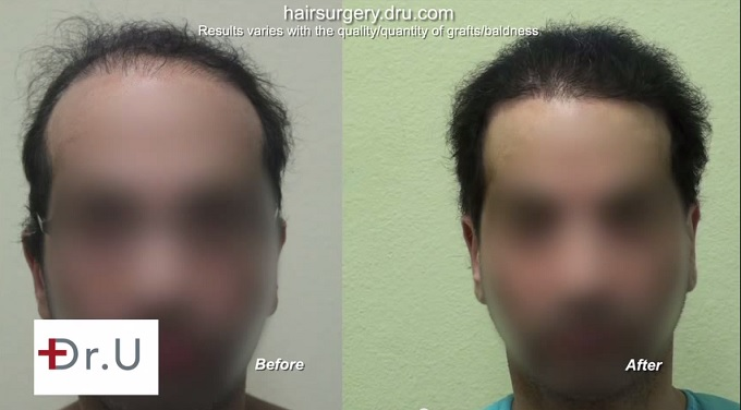 Body Hair Transplant Surgery| 11,000 Grafts - Front Facial View