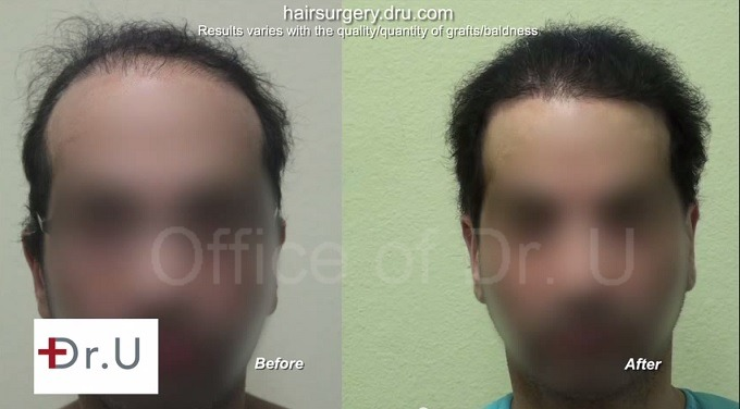 hairline and temple restoration|results after body hair transplant