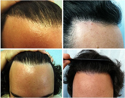 Hairline Edge| Leg Hair Grafts Repair Pluggy Outcome