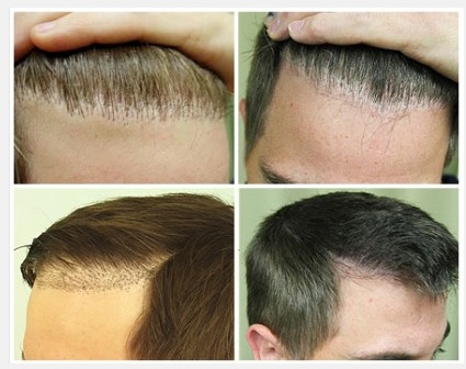 Pluggy Hairline Repair| Use of FUE with Nape Hair