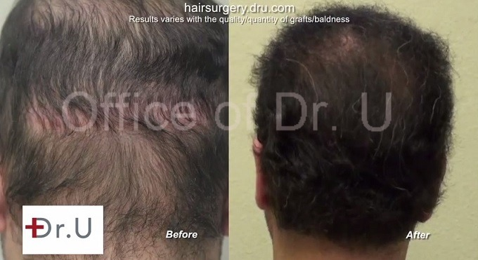 Strip Scar Concealed| Insertions of Body and Head Hair