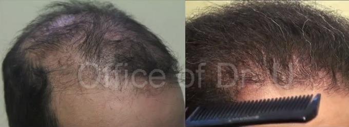 temple restoration  hairline restoration  patient's results