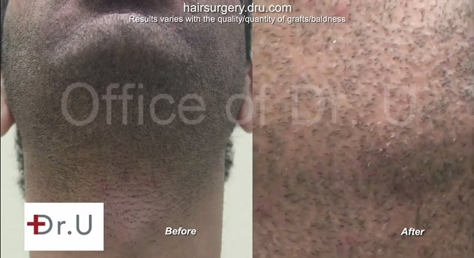 Beard Hair Transplant| Wound Healing Results on Patient's Face