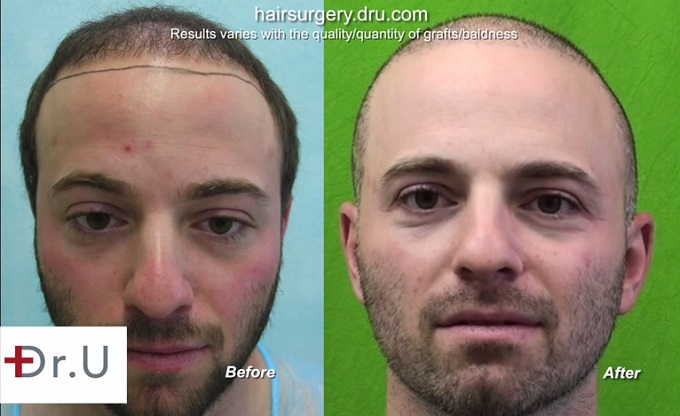 Full Face View| Body Hair Transplant Patient Before & After