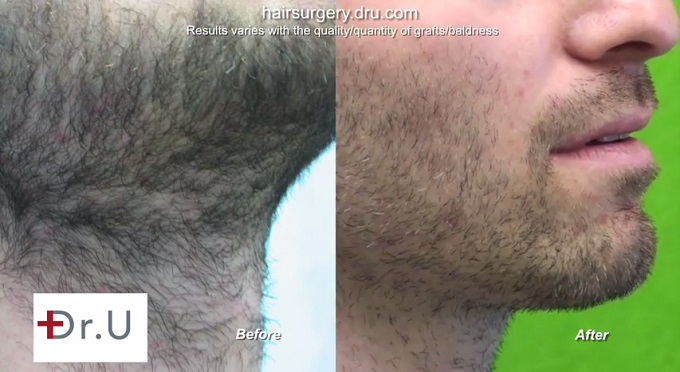Body to beard hair transplant. Beard Healing Results|Before & After Body Hair to Head Transplant