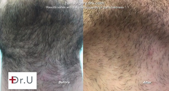 Pristine Beard Donor Healing|Before & After