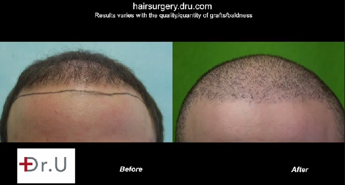 New Hairline|Before & After Facial Hair to Head Transplant