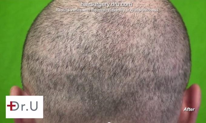 Strip Scar Coverage| Patient's Buzz Cut