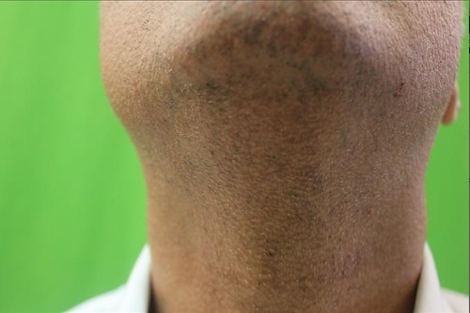 Beard Hair Transplant| Donor Area Close Up