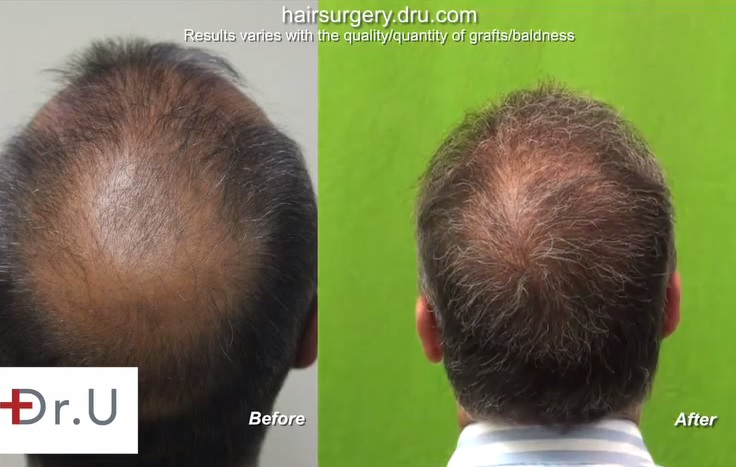 Crown coverage by beard hair to head transplant - Patient Before and After