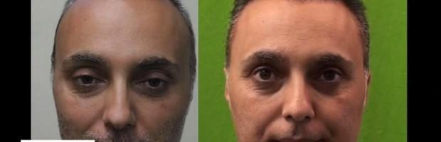 Patient Update|Second Hair Transplant Repair|2000 More Grafts