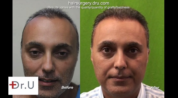 Patient Update|Second Hair Transplant Repair|2000 More Grafts