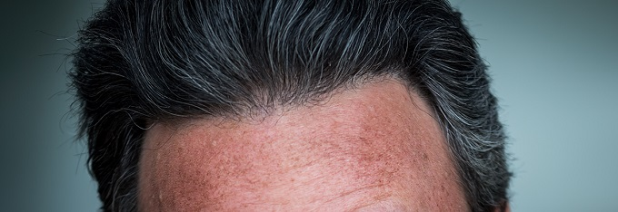 Pluggy Hairline And Hair Transplant Repair Using Ugraft Fue