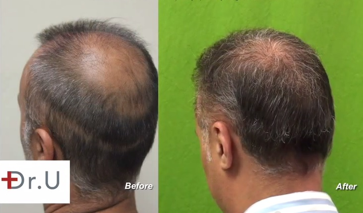 Strip Scar Repair |Body Hair Grafts|Left Side of Head