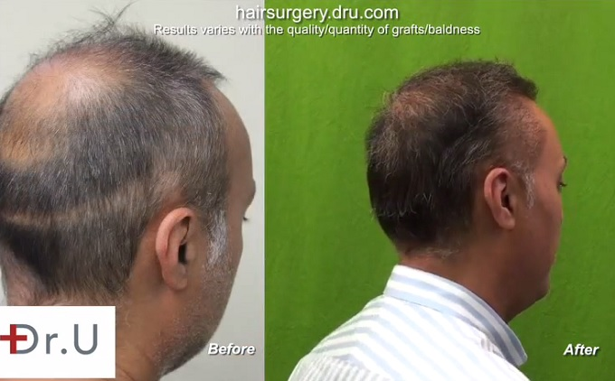 UGraft beard hair to head transplant repair - 8000 grafts Results of Graft Insertion into Strip Scar