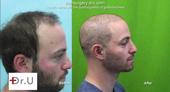 BHT Temple Hair Restoration| Profile View of Results