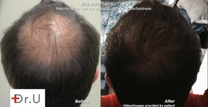 Crown Restoration| Results of Beard Hair to Head Transplant