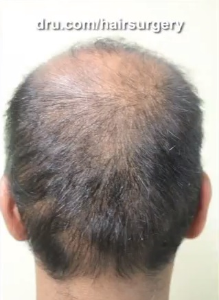 Donor Management| Over Harvesting of Donor Grafts on Head