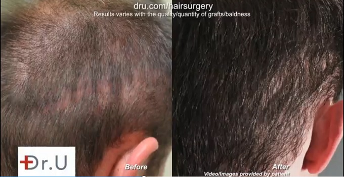 Strip Scar Repair| Before and After BHT Operation