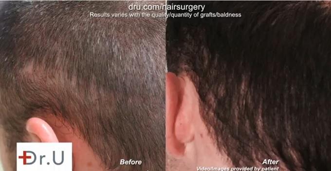 Repair of Strip Scar| Left Side of Patient's Scalp