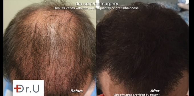Head and Beard Follicles Used for 4500 UGraft Surgery - 12 Months Later