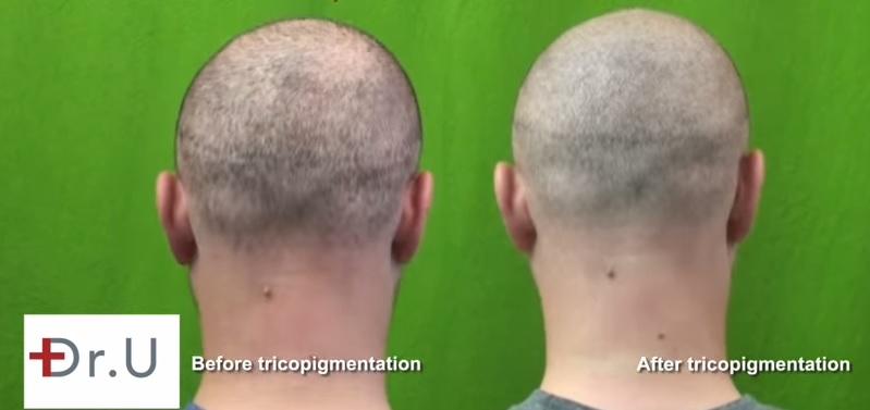 Strip Scar Repair  SMP - Trichopigmentation