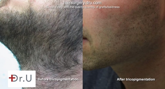 Beard Area Before and After UGraft extraction of over 4500 grafts