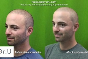 Scalp Pigmentation on Patient| Before and After SMP via Tricopigmentation