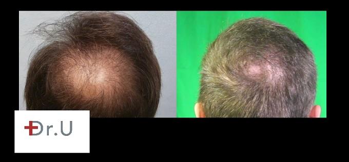 Restoration of Bald Crown  Body Hair Transplant Grafts