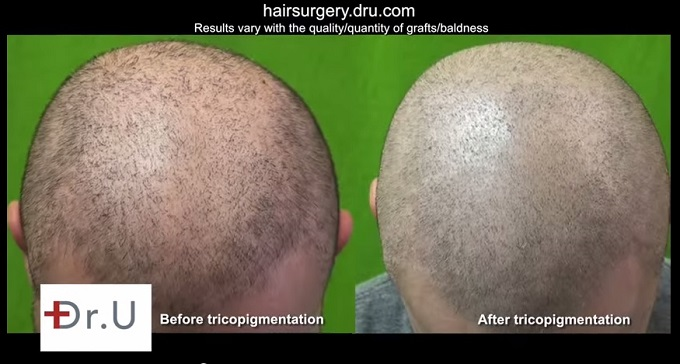 Tricopigmentation| Top of Head - Scalp Pigmentation Results