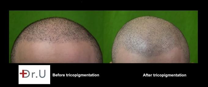 Hairline  Scalp Micropigmentation Via Trichopigmentation