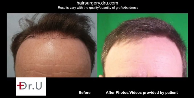 Accell. hair restoration surgery. Hairline Restoration|Hairline Advancement on Patient -BHT Surgery