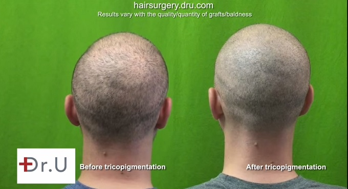 Back of Head| Tricopigmentation Scalp Pigmentation Results