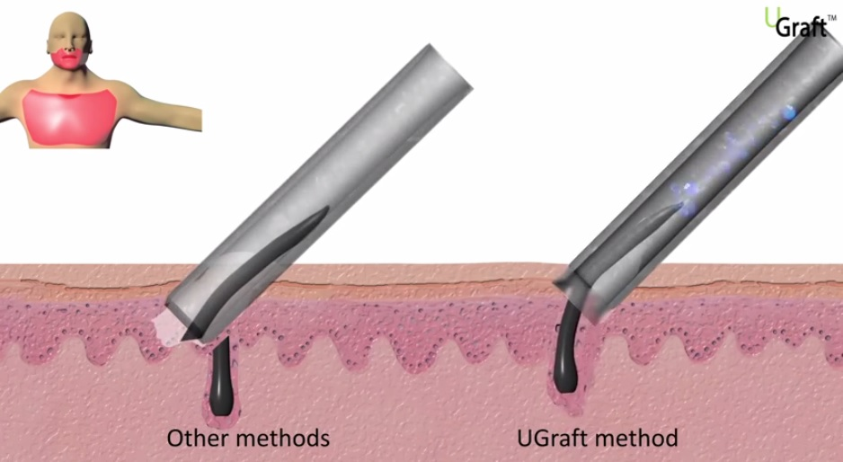 UGraft FUE Hair transplant tool receives US Patent