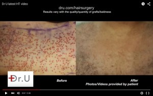 Chest hair extraction wound healing by Dr U